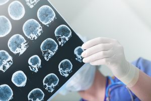 traumatic brain injury lawyer Long Island